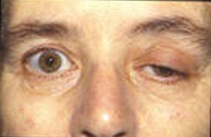 Bệnh nhược cơ là gì 2